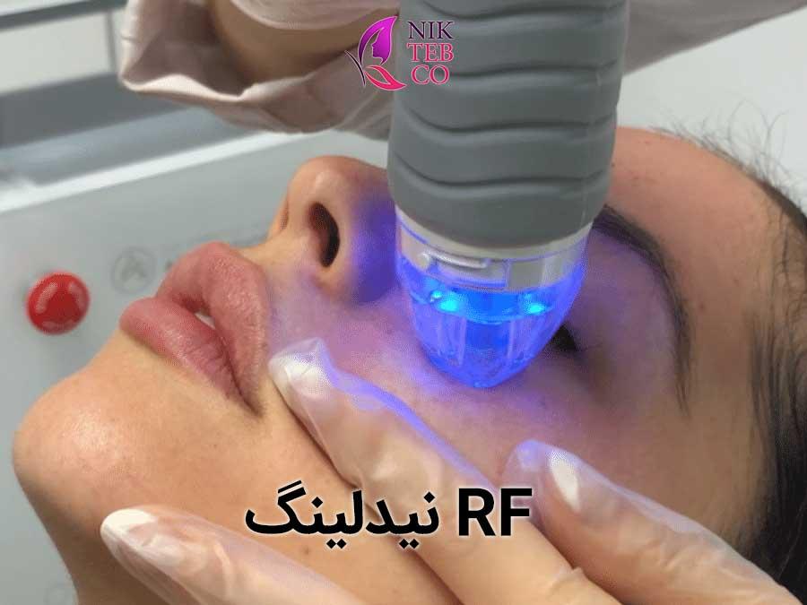 RF - میکرونیدلینگ